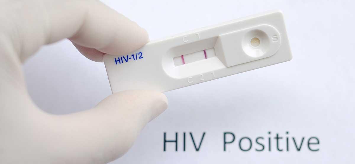 Hiv Case Management Casper Natrona County Health Department